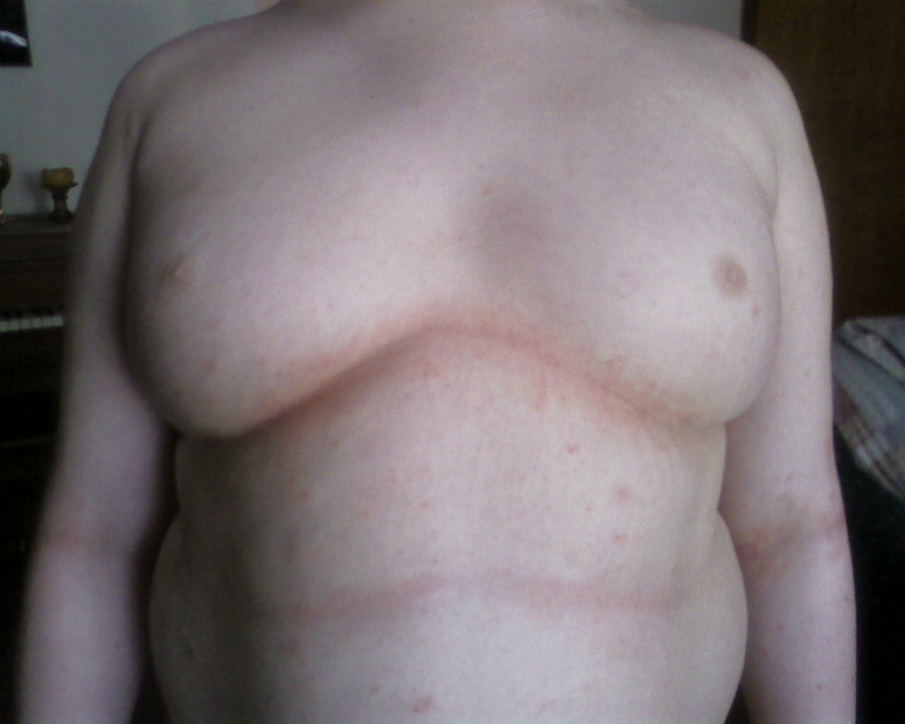 chest scabies day 2